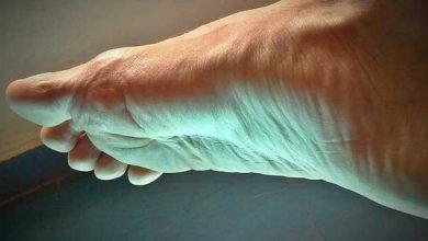 Hekla lava bei oder Druckschmerz, Fersensporn und Osteoporose