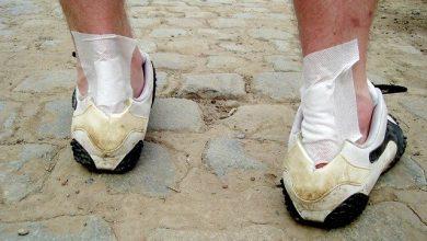 Fersenschmerzen und Fußsohlensehne (Plantarfasziitis)
