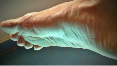 Behandlung mit Homöopathie bei Fersensporn